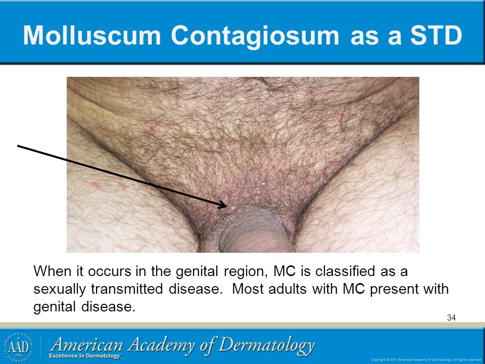 Molluscum Contagiosum as a STD