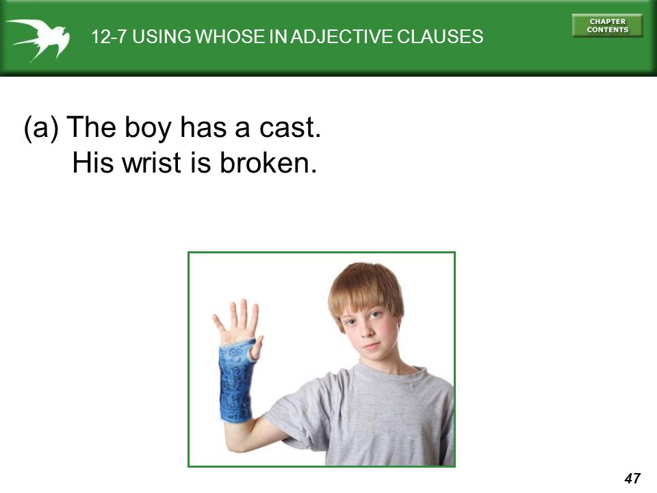 (a) The boy has a cast. His wrist is broken.