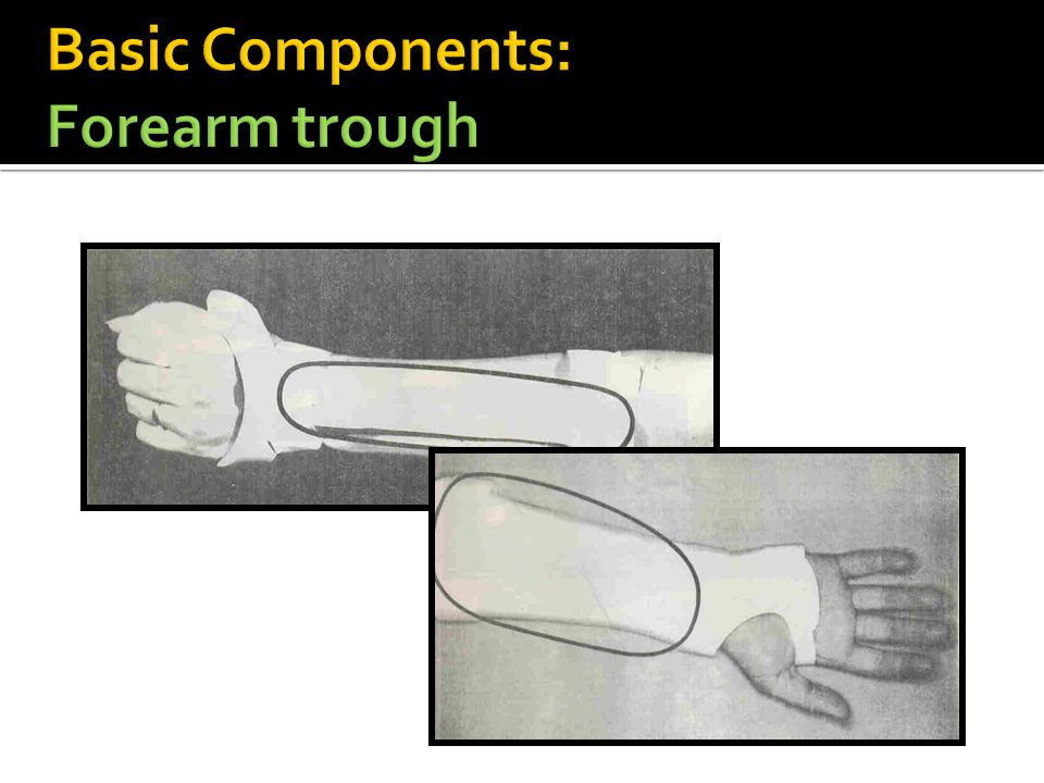 Basic Components: Forearm trough