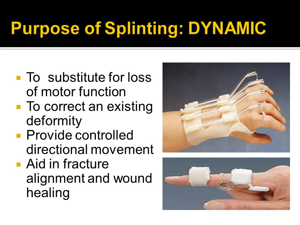 Purpose of Splinting: DYNAMIC