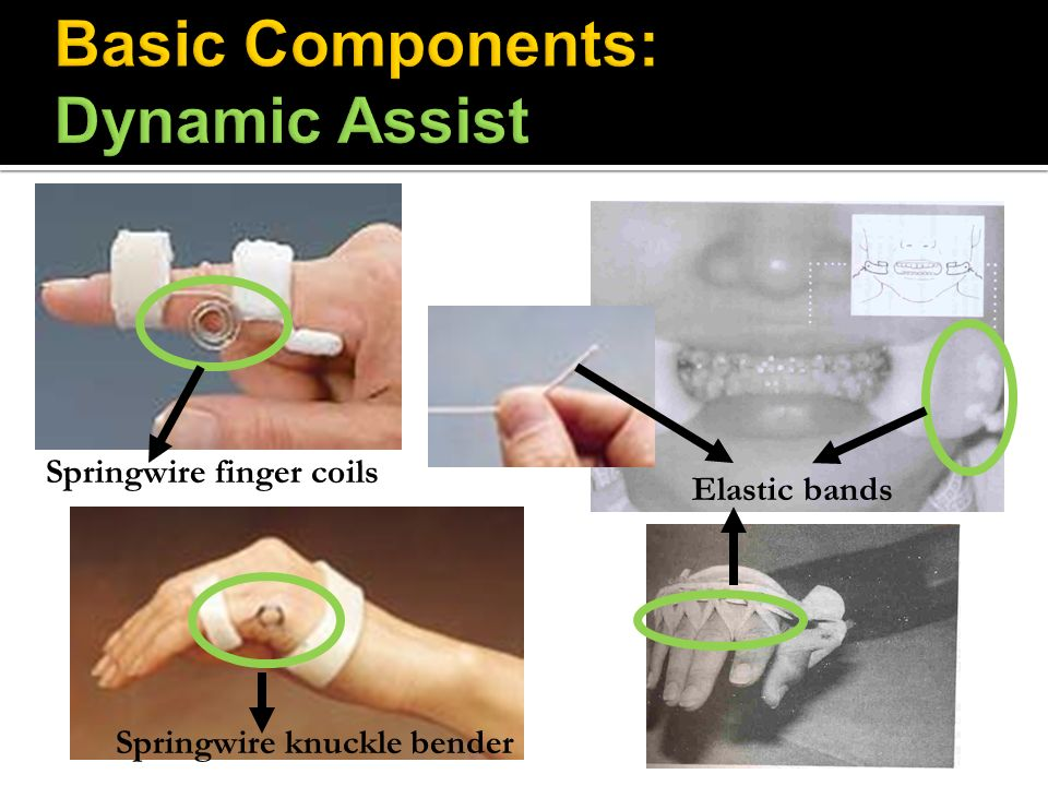 Basic Components: Dynamic Assist