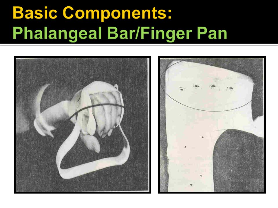 Basic Components: Phalangeal Bar/Finger Pan