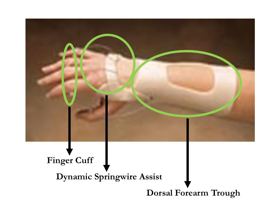 Finger Cuff Dynamic Springwire Assist Dorsal Forearm Trough