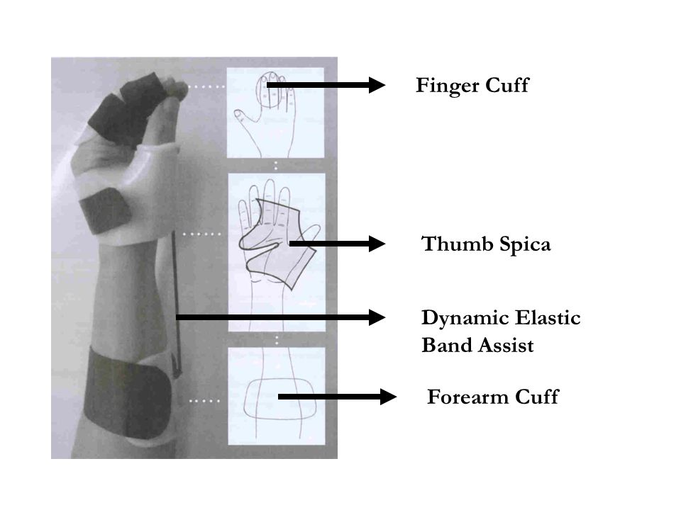 Finger Cuff Thumb Spica Dynamic Elastic Band Assist Forearm Cuff