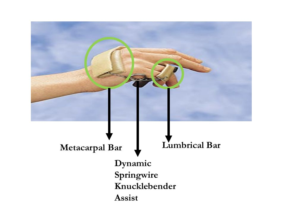 Lumbrical Bar Metacarpal Bar Dynamic Springwire Knucklebender Assist