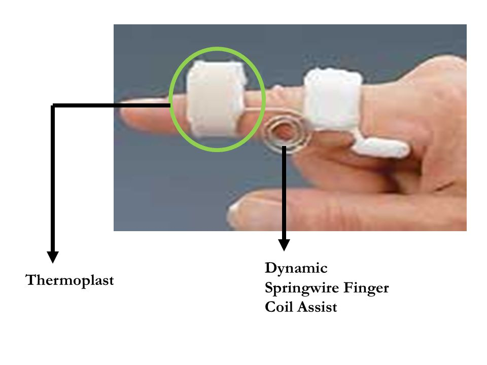 Dynamic Springwire Finger Coil Assist