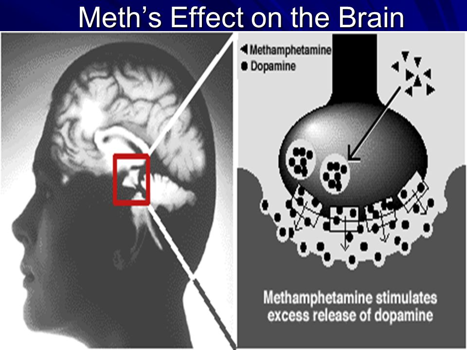 Meth's Effect on the Brain