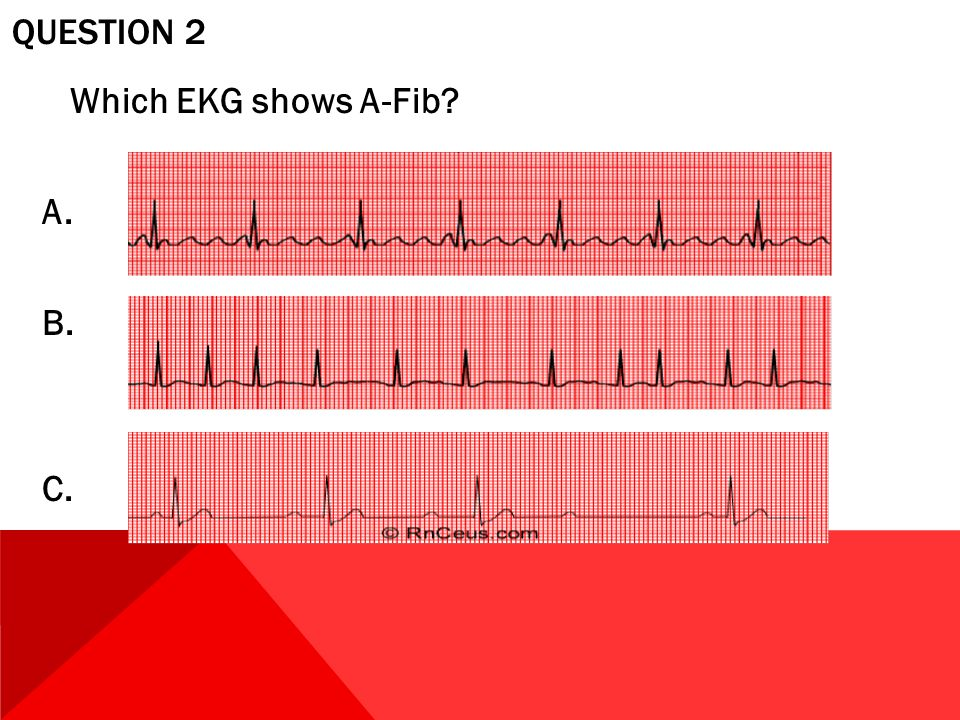 Question 2 Which EKG shows A-Fib A. B. C.