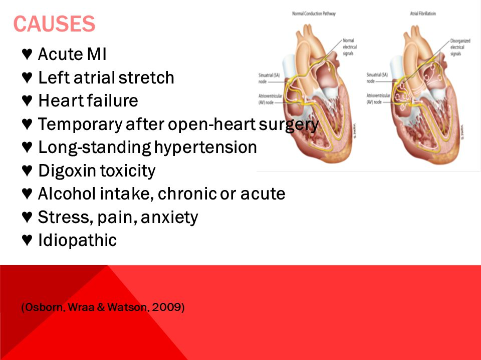 Causes ♥ Acute MI ♥ Left atrial stretch ♥ Heart failure