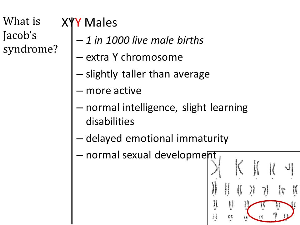 XYY Males What is Jacob's syndrome 1 in 1000 live male births
