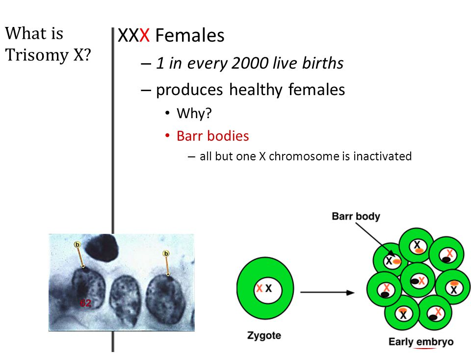 XXX Females What is Trisomy X 1 in every 2000 live births