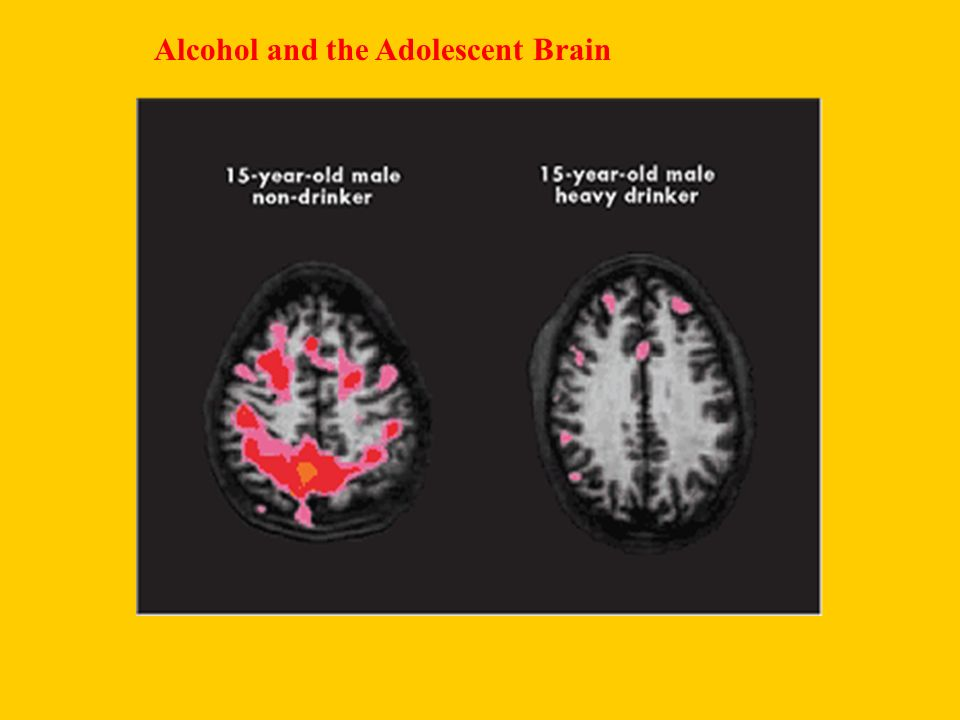 Alcohol and the Adolescent Brain