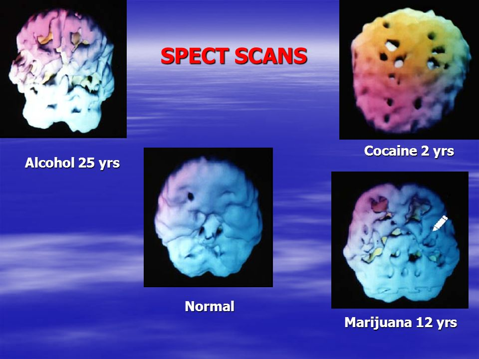 SPECT SCANS Cocaine 2 yrs Alcohol 25 yrs Normal Marijuana 12 yrs