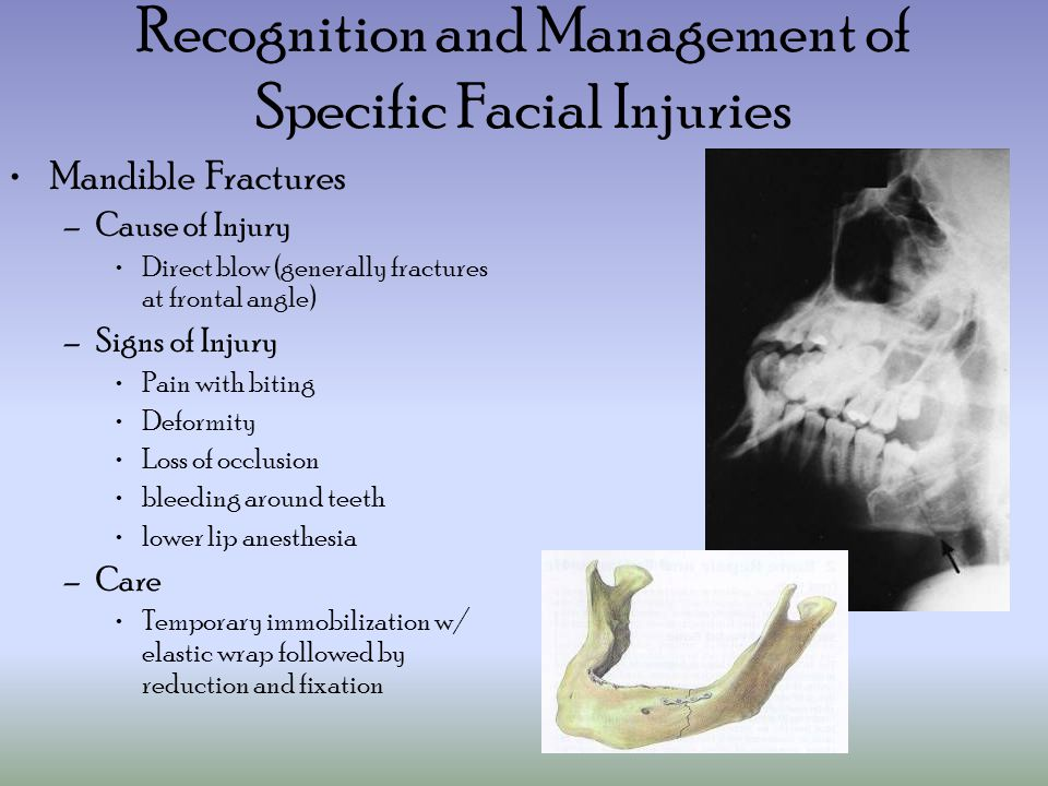 Recognition and Management of Specific Facial Injuries