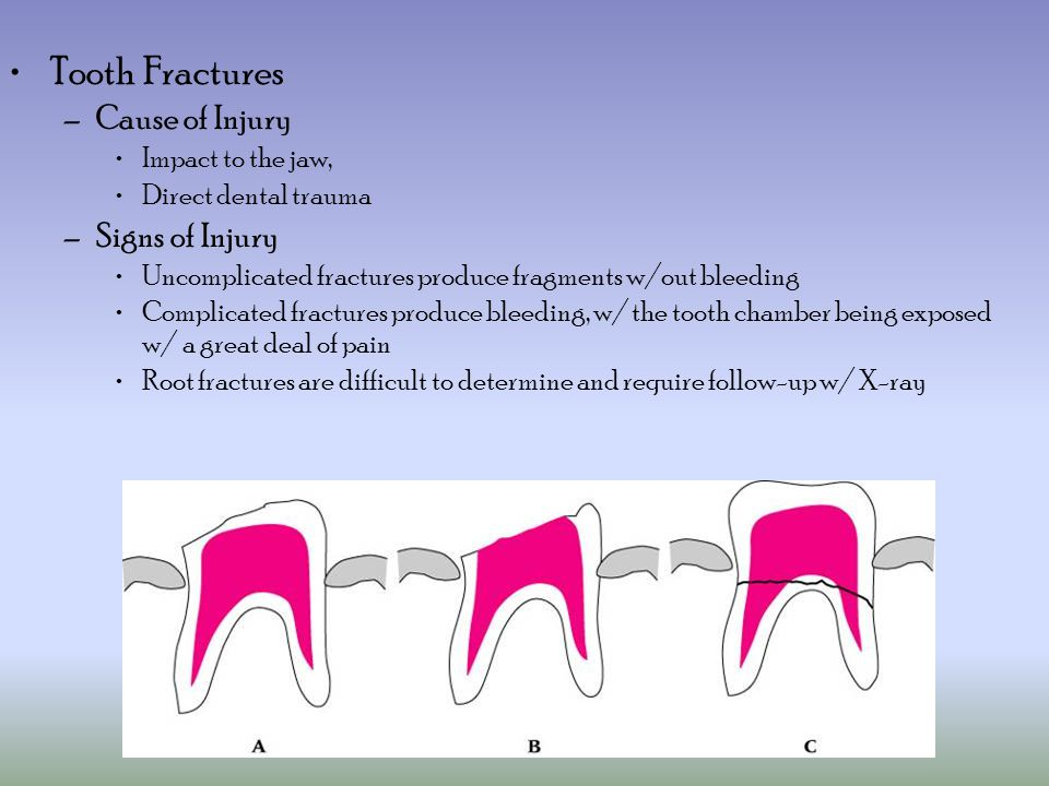 Tooth Fractures Cause of Injury Signs of Injury Impact to the jaw,