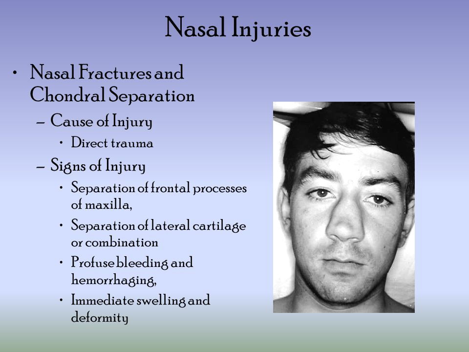 Nasal Injuries Nasal Fractures and Chondral Separation Cause of Injury