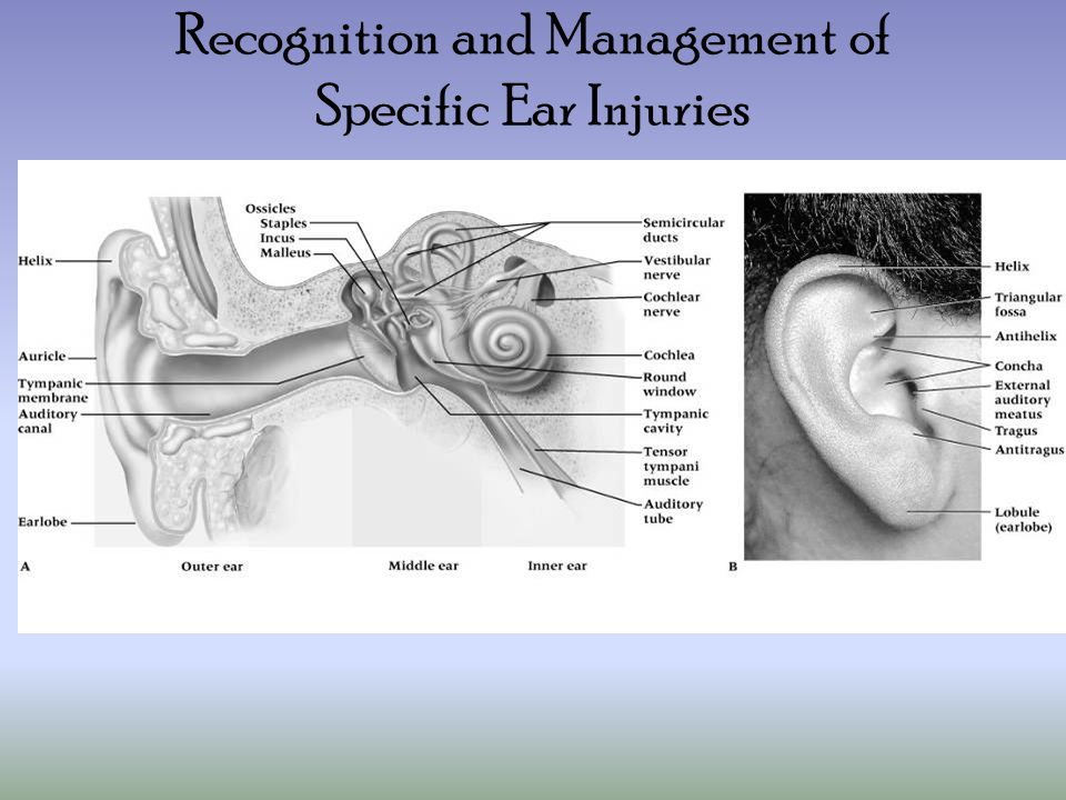 Recognition and Management of Specific Ear Injuries