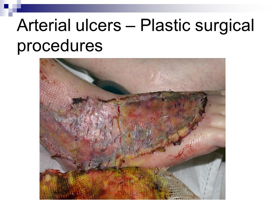 Arterial ulcers – Plastic surgical procedures