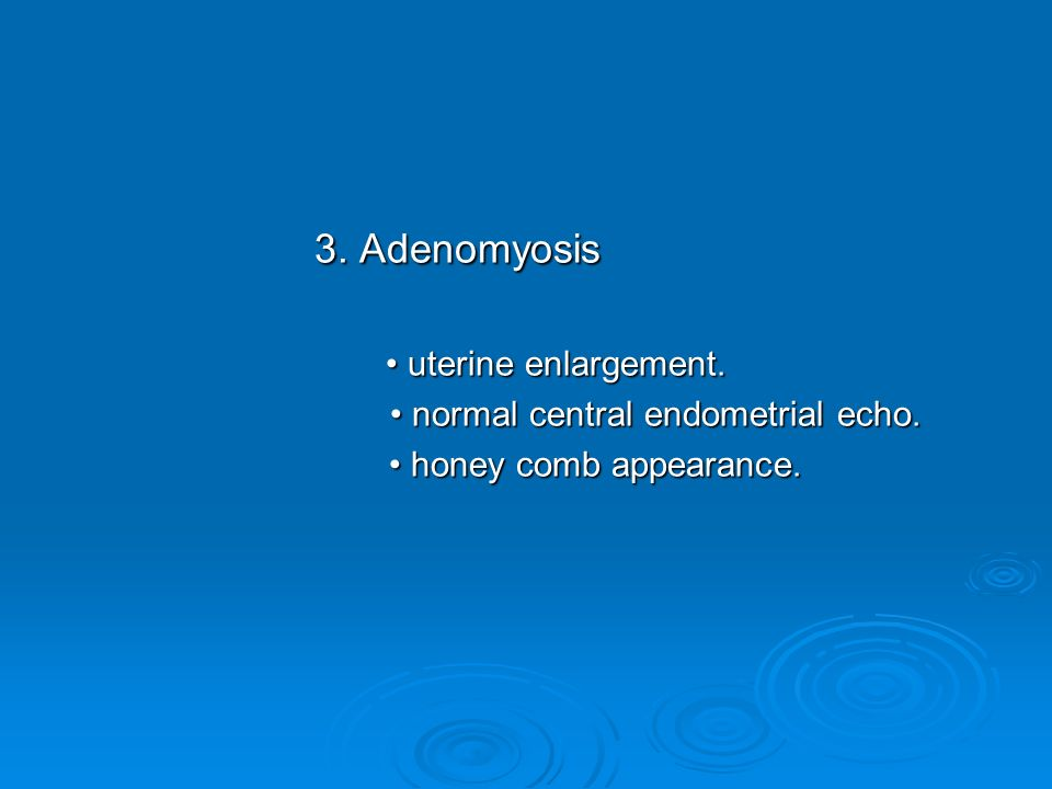 3. Adenomyosis • uterine enlargement.