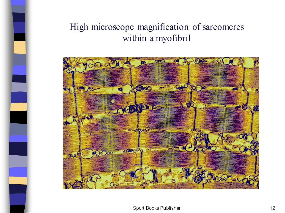 High microscope magnification of sarcomeres within a myofibril