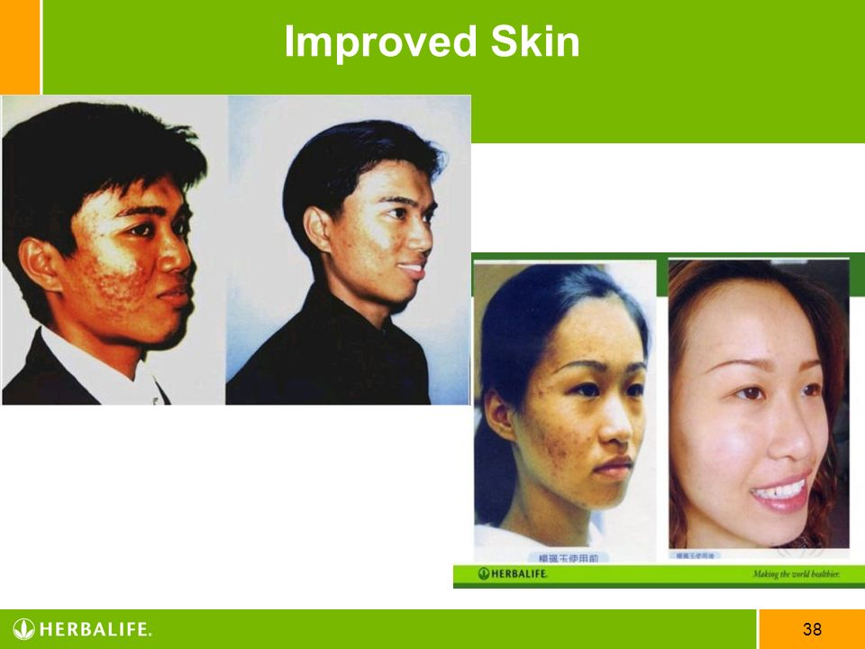 Improved Skin US English_STS CD 04/08/10 47858US_EVT_STSCD_ENG_p8.ppt