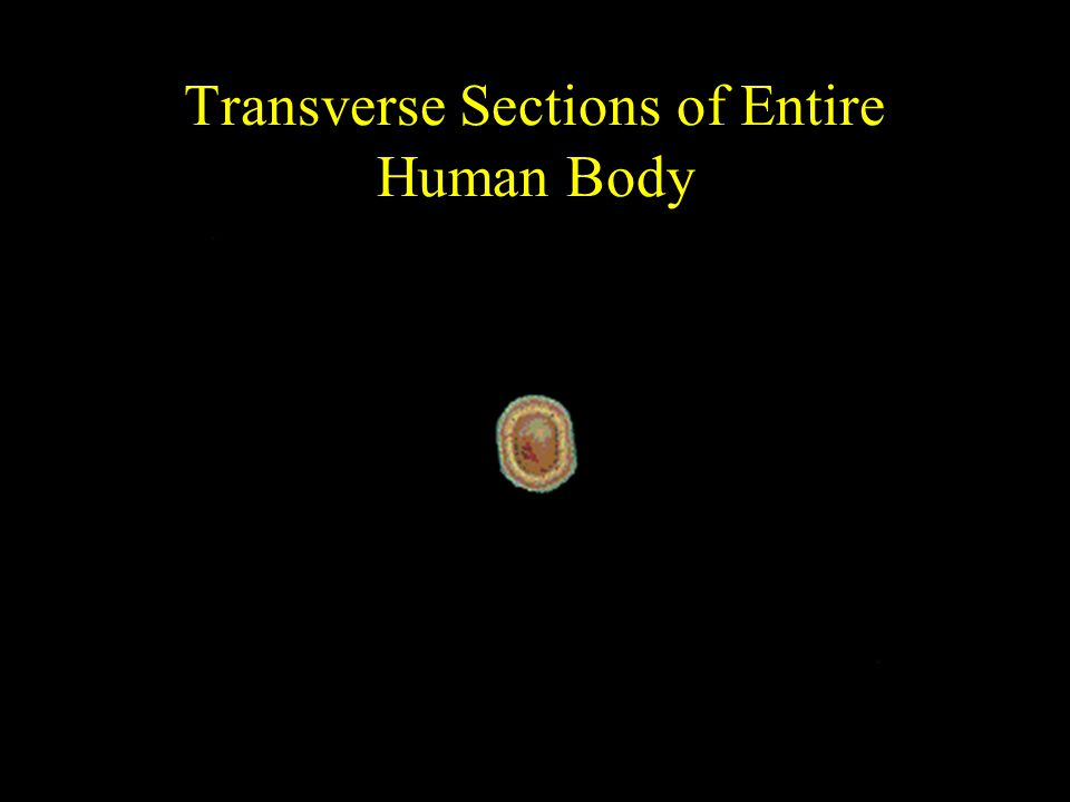 Transverse Sections of Entire Human Body