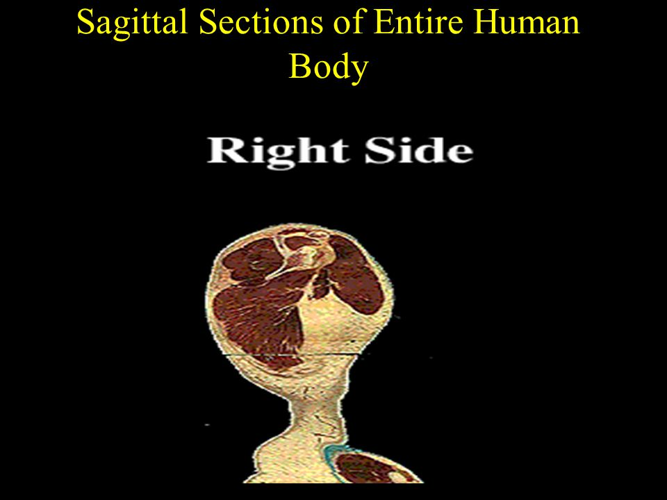 Sagittal Sections of Entire Human Body