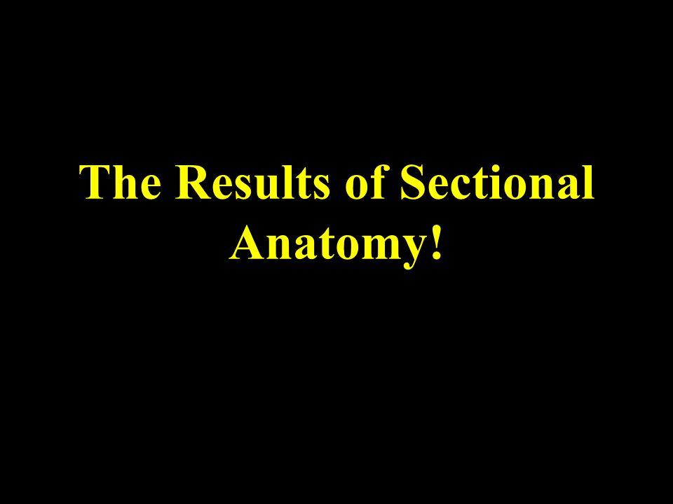 The Results of Sectional Anatomy!