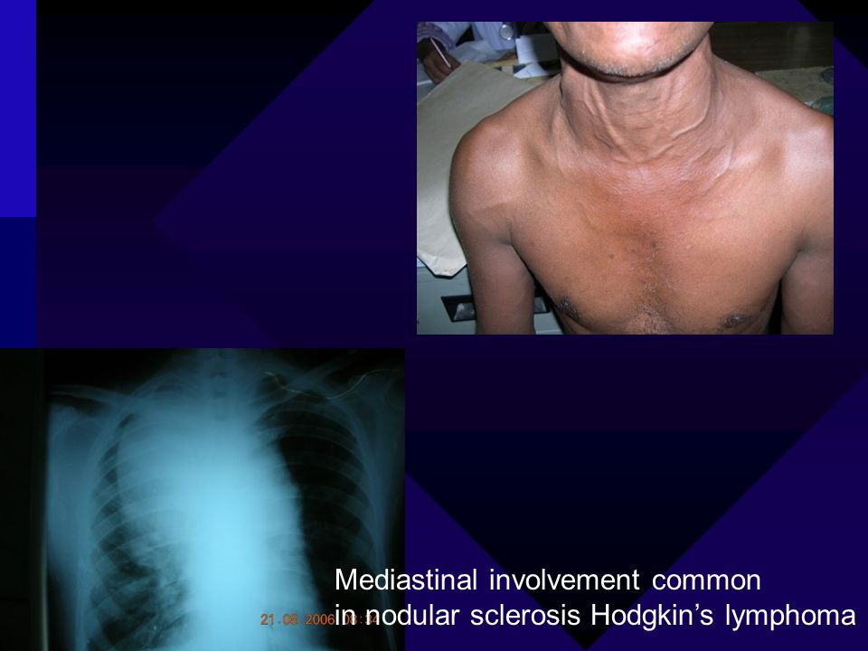 Mediastinal involvement common