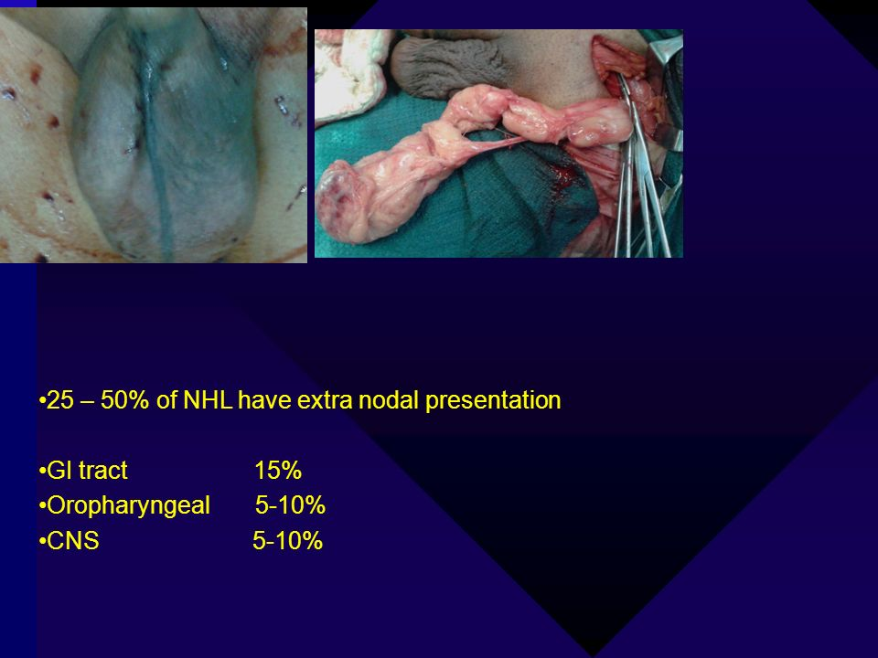 25 – 50% of NHL have extra nodal presentation