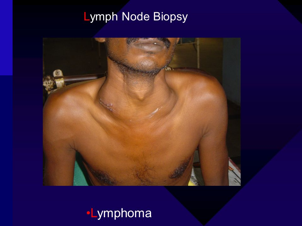 Lymph Node Biopsy Lymphoma
