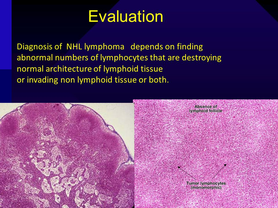 Evaluation Diagnosis of NHL lymphoma depends on finding