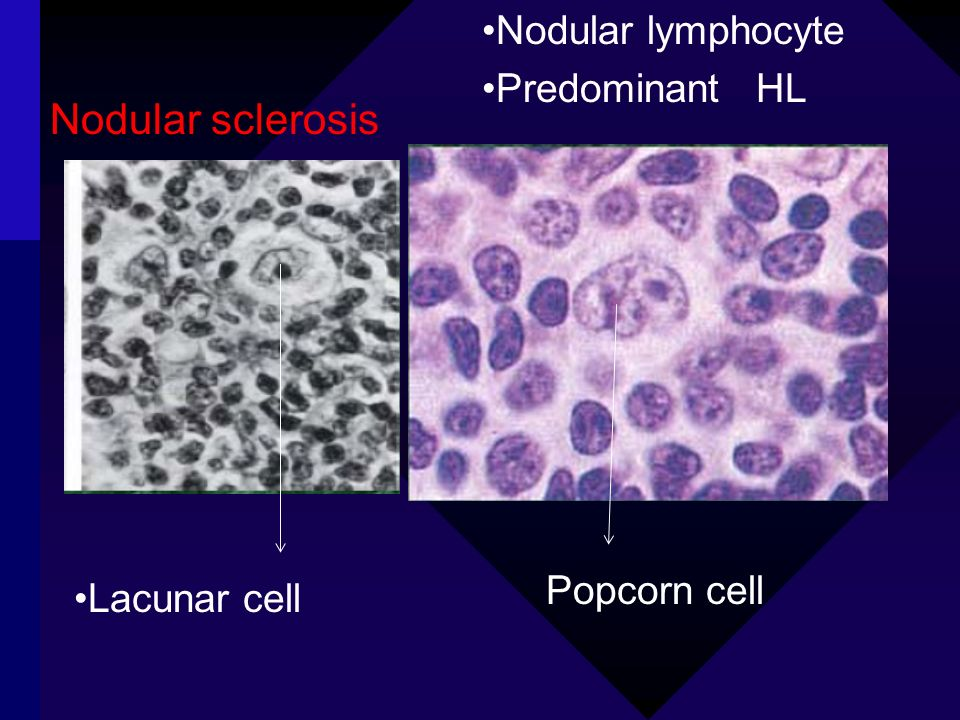 Nodular sclerosis Nodular lymphocyte Predominant HL Popcorn cell