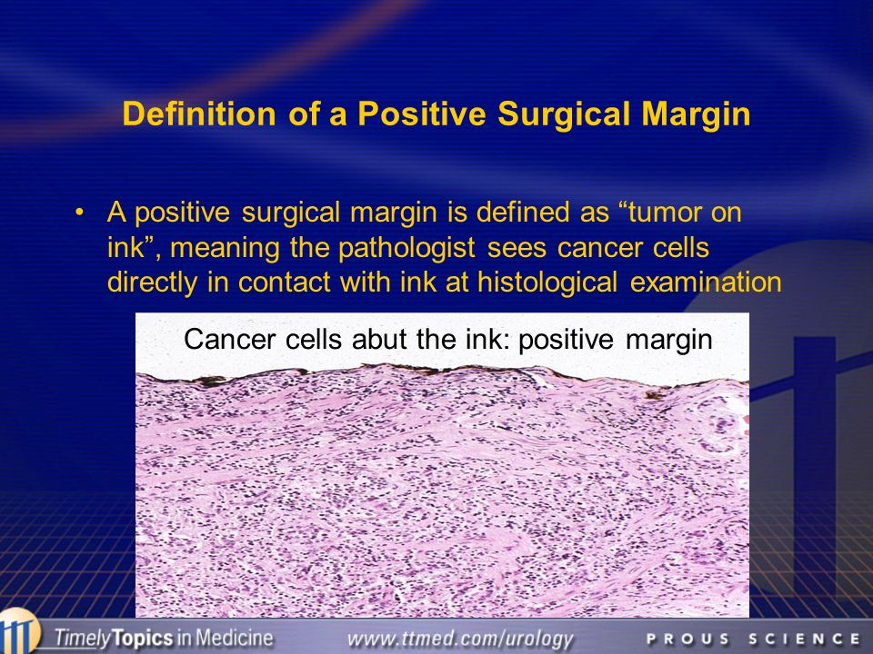 Definition of a Positive Surgical Margin