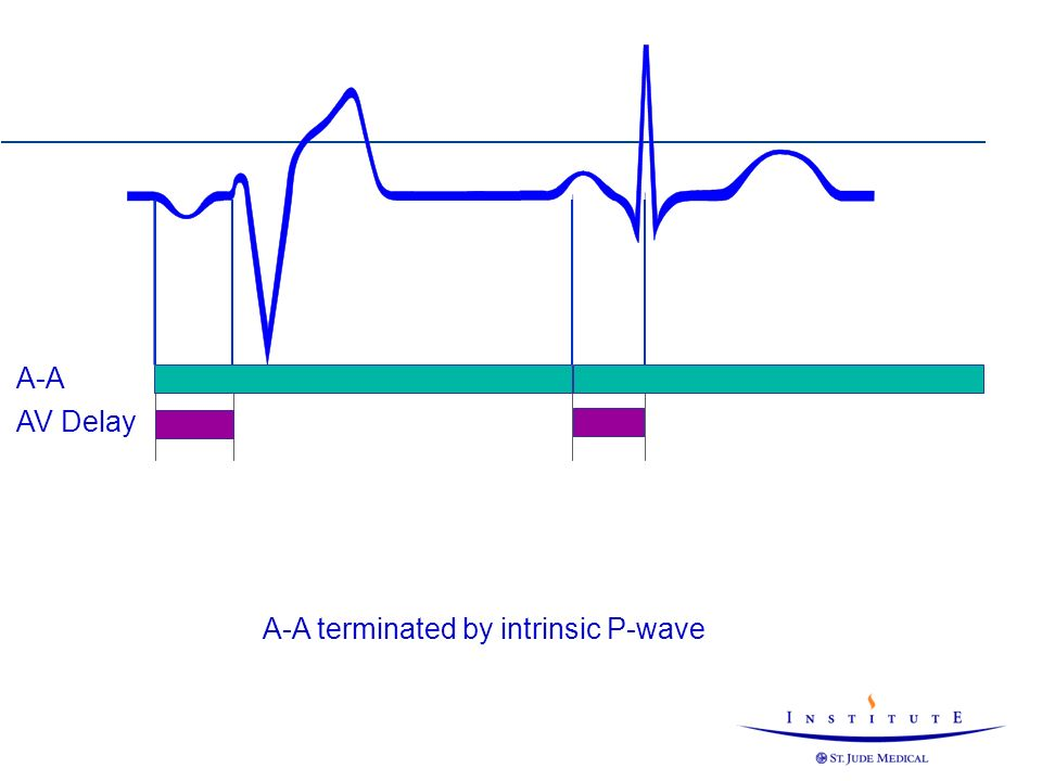 A-A terminated by intrinsic P-wave