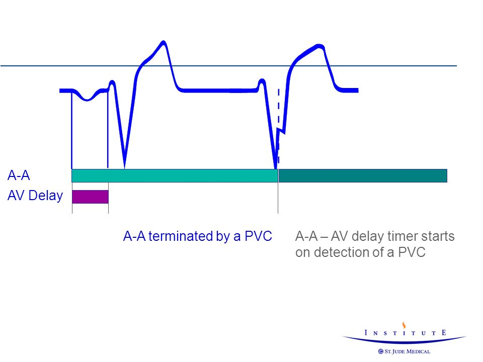 A-A – AV delay timer starts on detection of a PVC