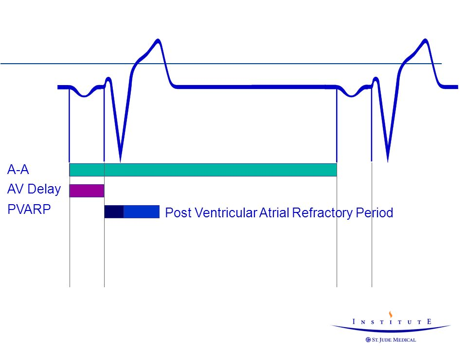 Post Ventricular Atrial Refractory Period