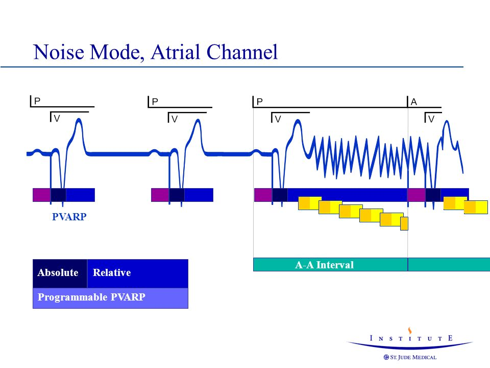Noise Mode, Atrial Channel