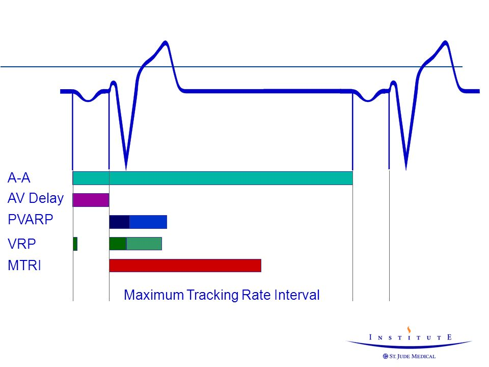 Maximum Tracking Rate Interval