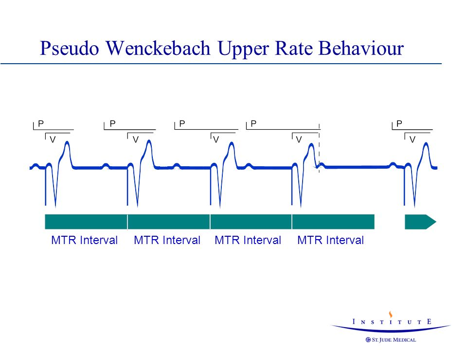 Pseudo Wenckebach Upper Rate Behaviour