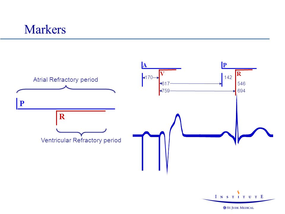 Markers P R A V P R Atrial Refractory period