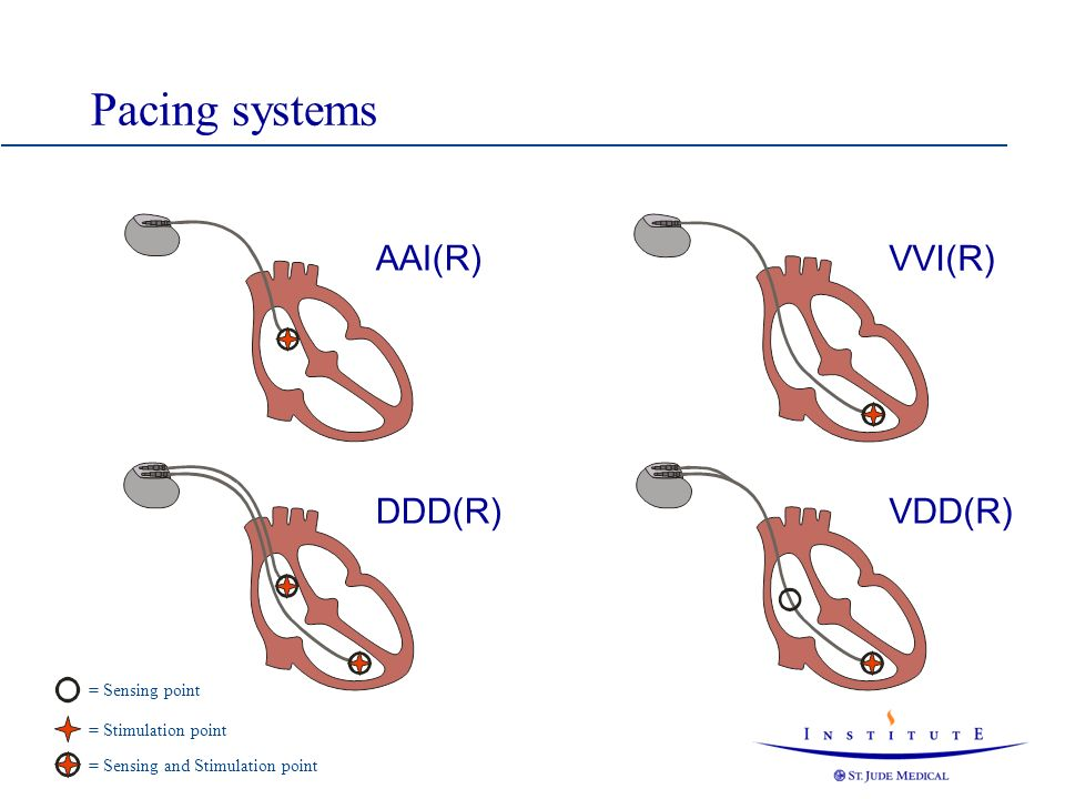 Pacing systems AAI(R) VVI(R) DDD(R) VDD(R) = Sensing point