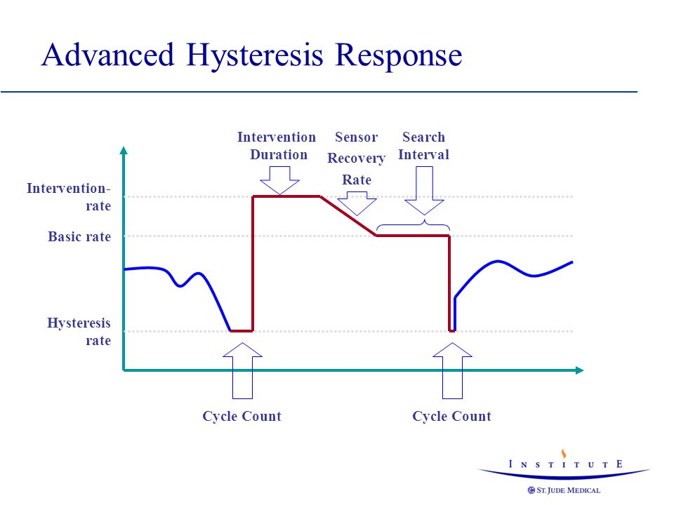 Advanced Hysteresis Response
