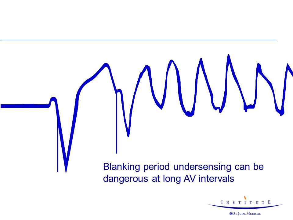 Blanking period undersensing can be dangerous at long AV intervals