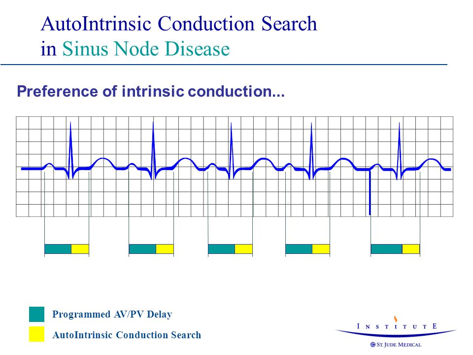 AutoIntrinsic Conduction Search in Sinus Node Disease
