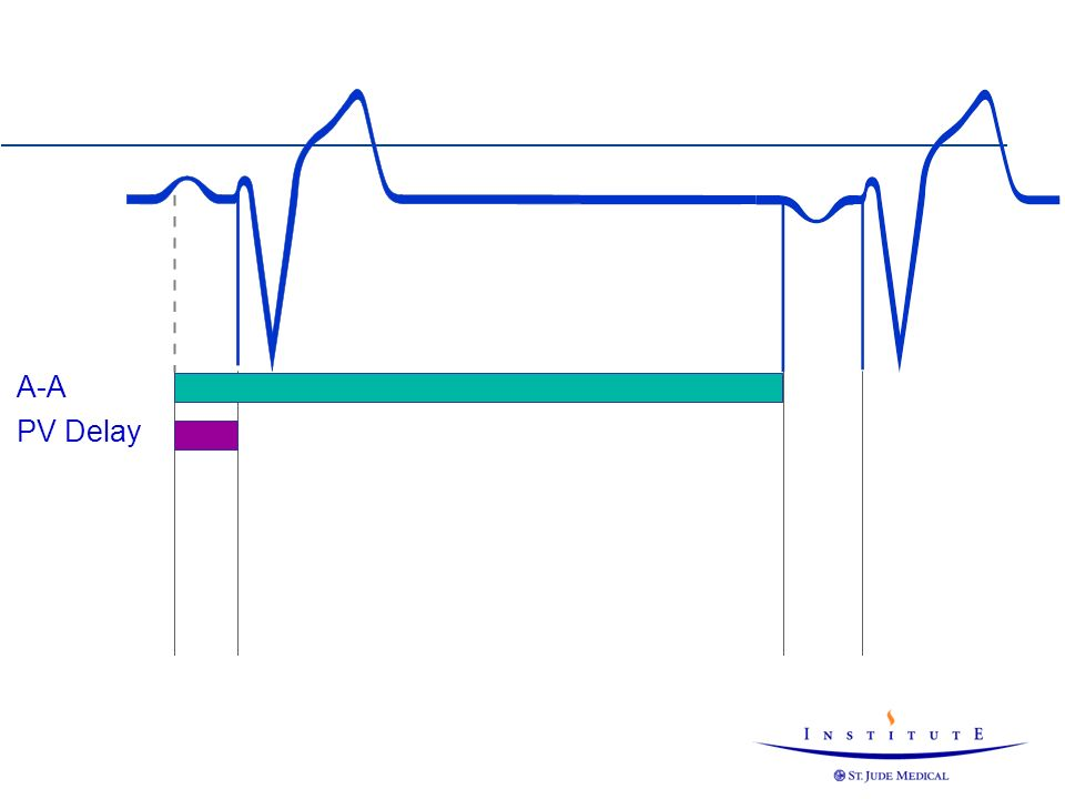 A-A PV Delay PV delay is like the AV delay but the starting point is the sensing of a P-wave.