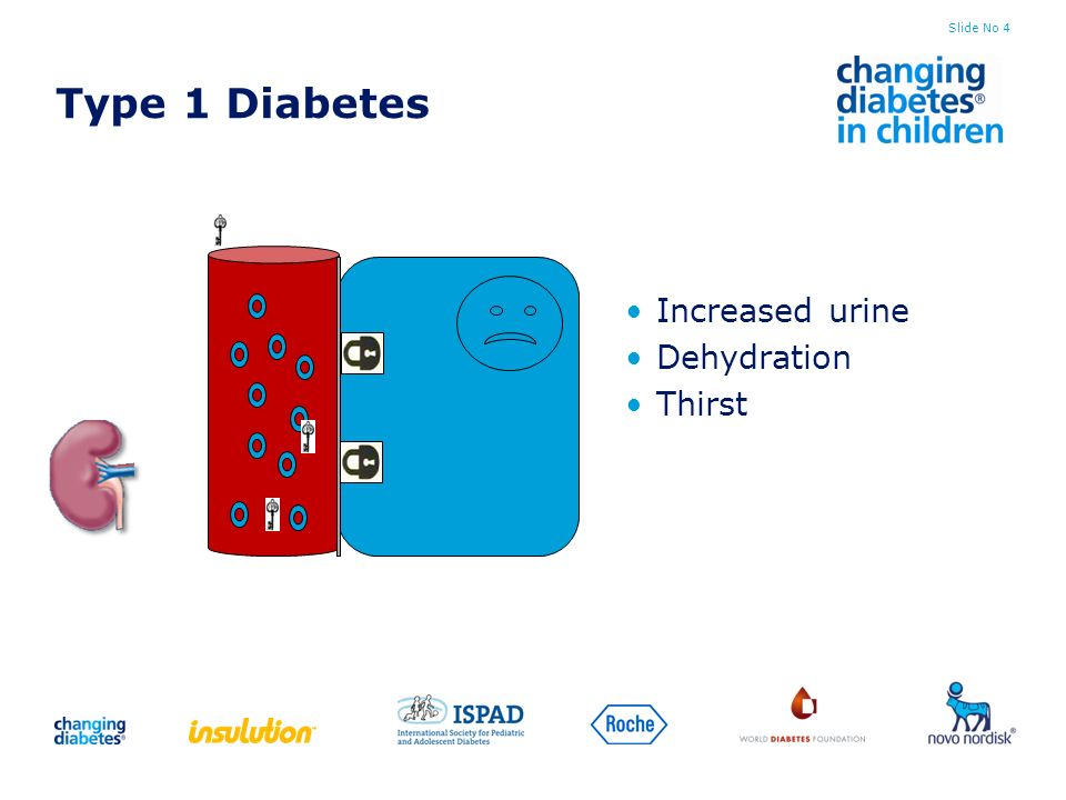 Type 1 Diabetes Increased urine Dehydration Thirst