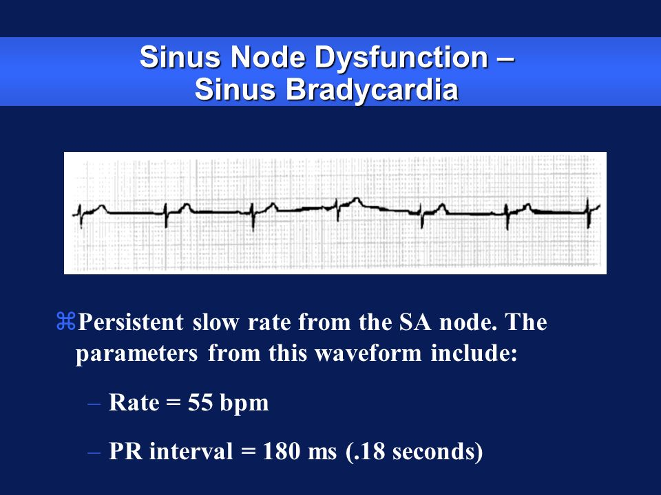 Sinus Node Dysfunction – Sinus Bradycardia