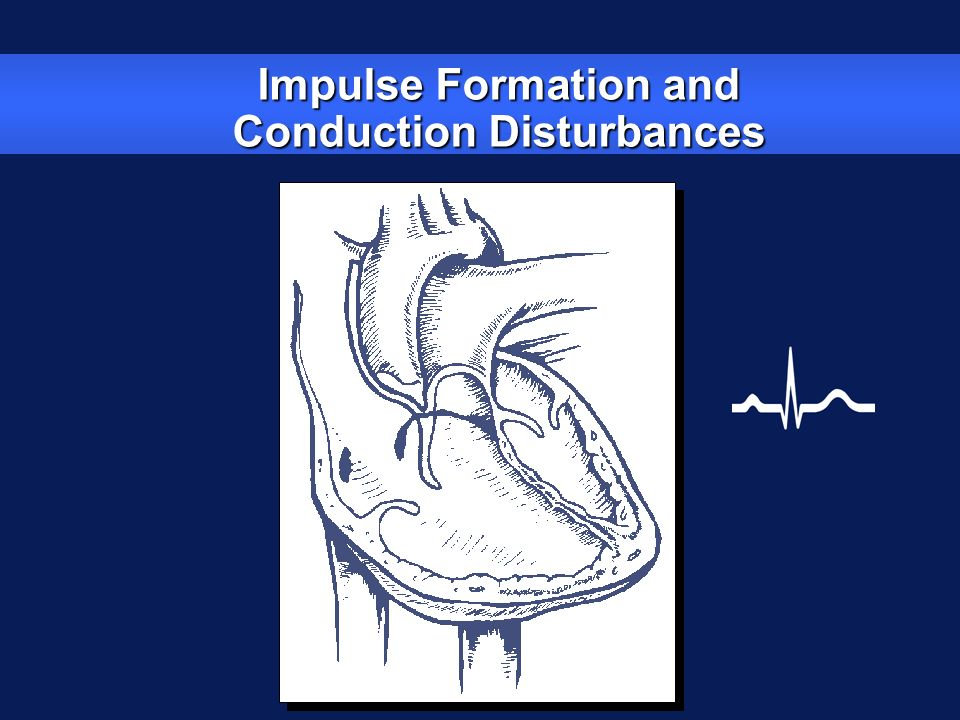 Impulse Formation and Conduction Disturbances