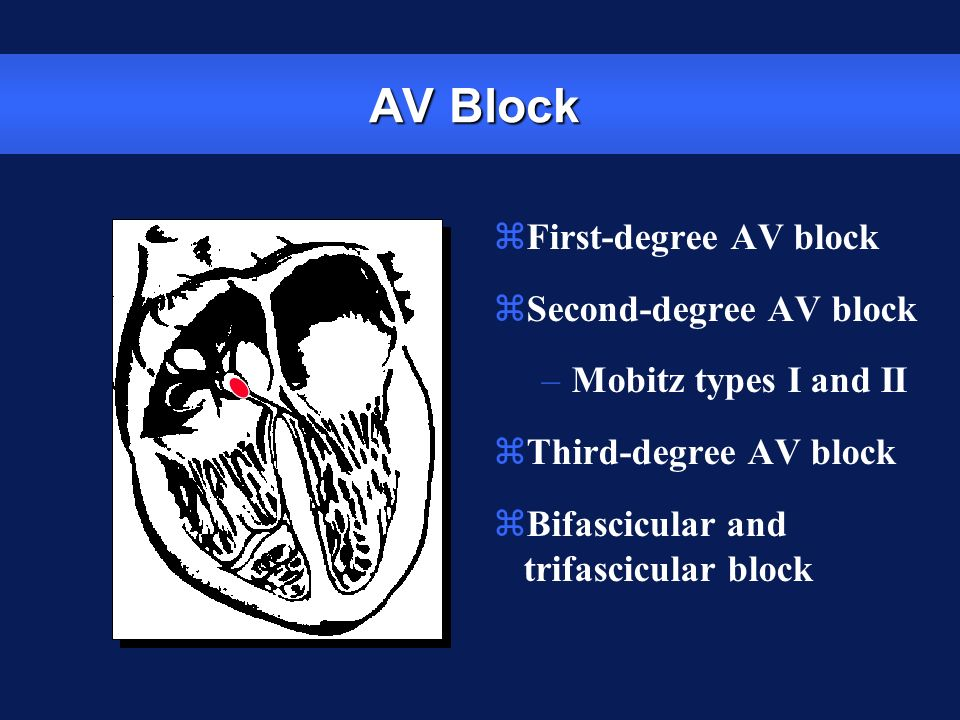 AV Block First-degree AV block Second-degree AV block